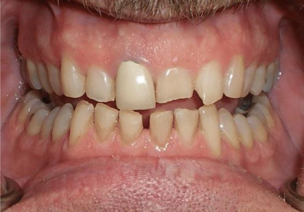 Before smile treatment with failing root canal
