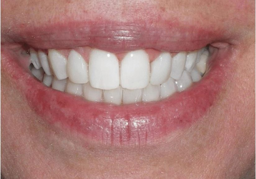 Smile afterAnterior Composite and Gingivectomy