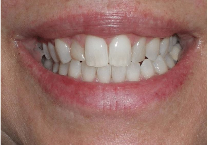 Smile before Gingivectomy and Composite