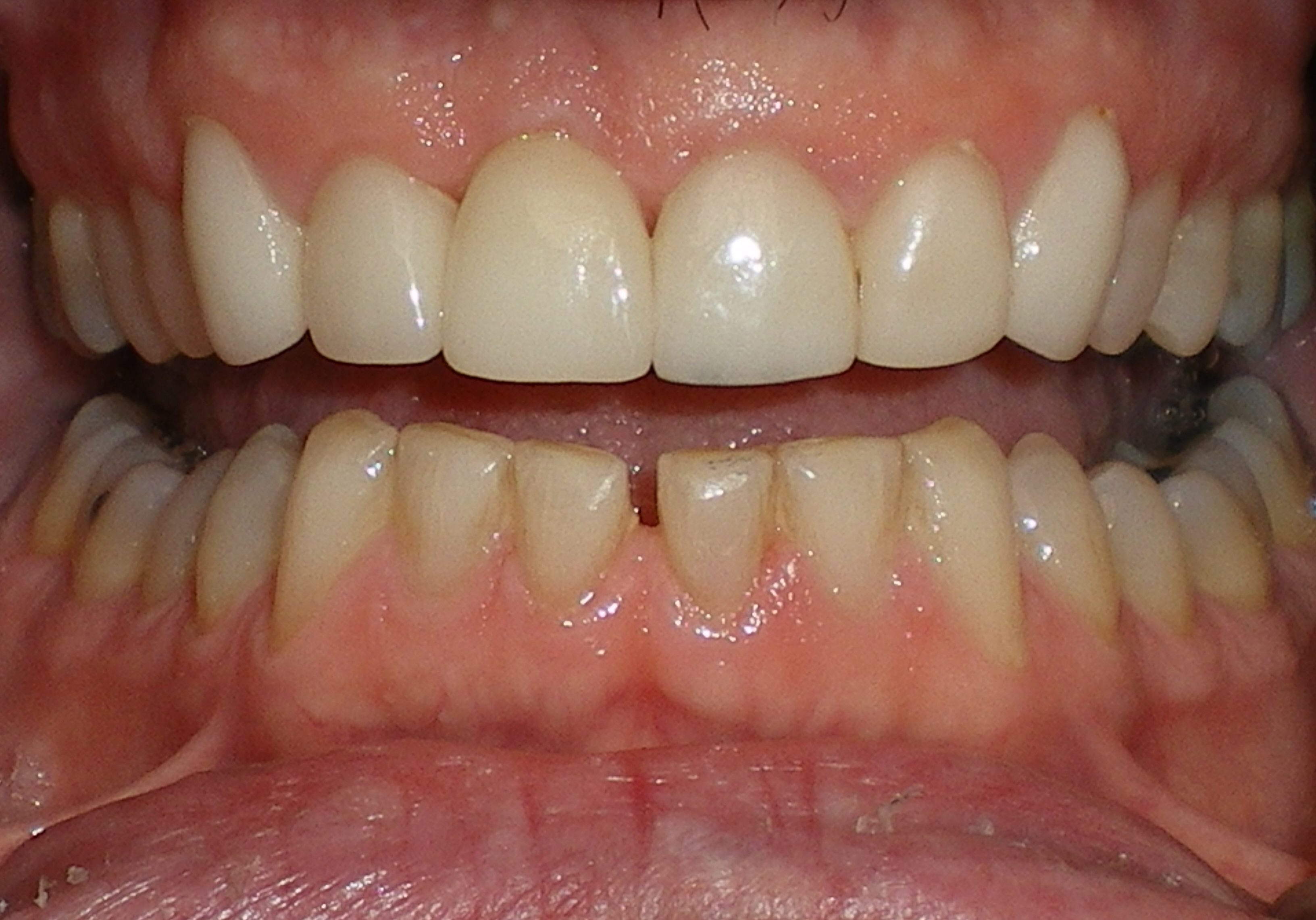 Implant and Crowns Completed