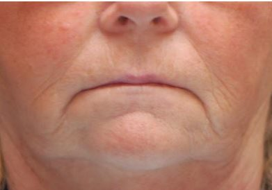Before corners of mouth Dermal Filler