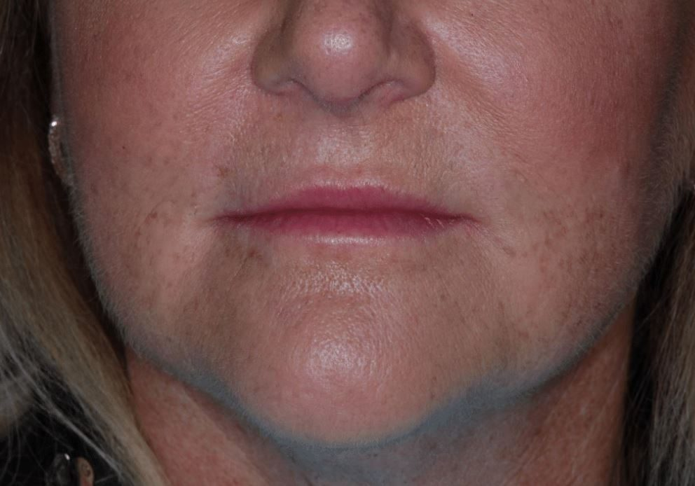After Dermal Filler