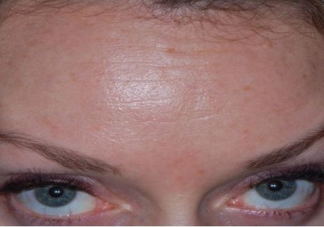 Forehead Lines After Botox Injection