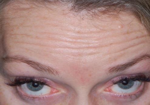 Forehead lines Before Botox injection