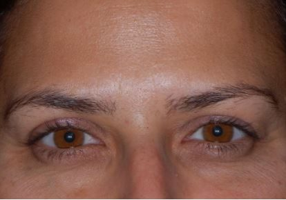 Frown lines After Botox injection
