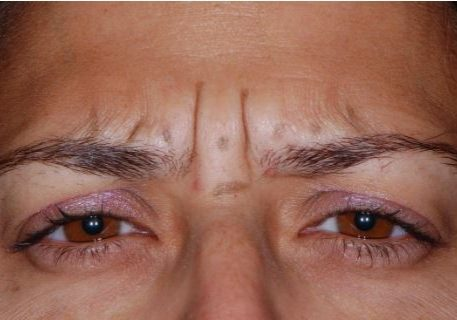 Frown Lines Before Botox injection